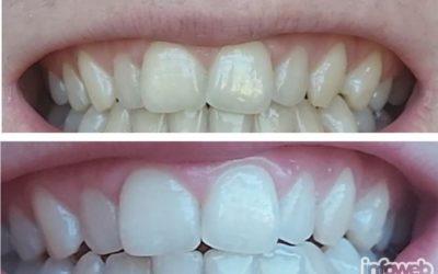 Studio PINK Đakovo – Izbjeljivanje zubi u Đakovu